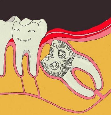 Во сколько лет удаляют зуб мудрости